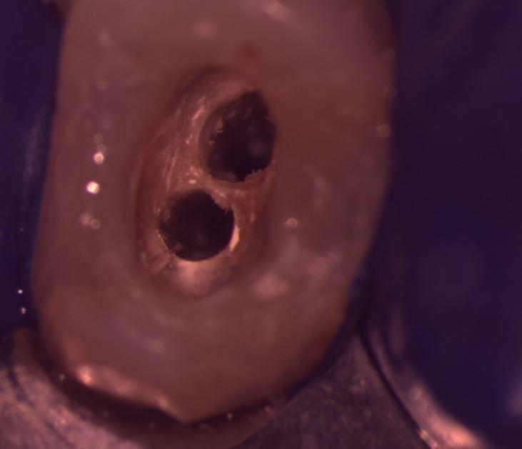 ENDODONZIA MICROSCOPICA